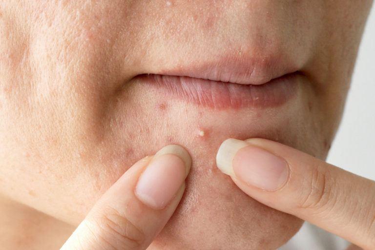 عوامل سرطان پوست