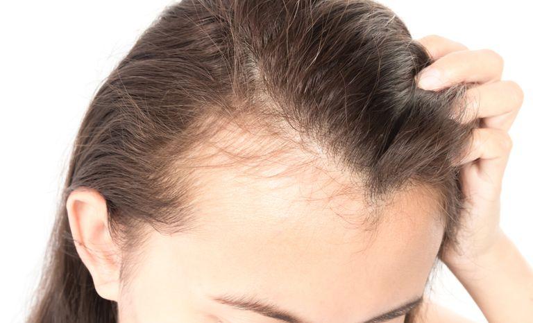 درمان خانگی ریزش مو و طاسی سکه ای
