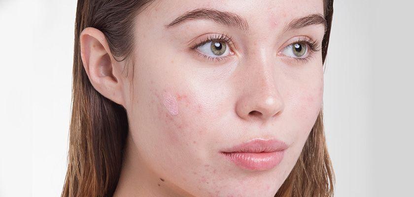 درمان خانگی لکه های صورت