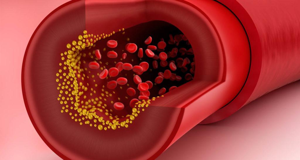 صفر تا صد عوامل، علائم و راه تشخیص کلسترول خون بالا و تریگلیسیرید