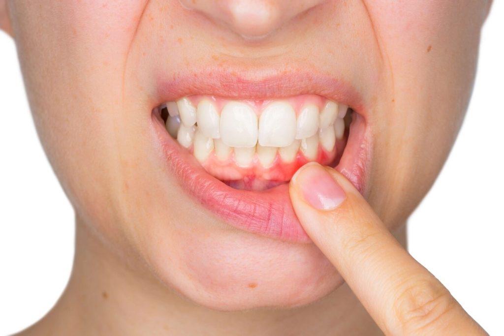 درمان خانگی پوسیدگی دندان