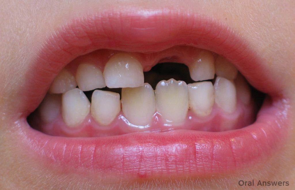 تعبیر خواب دندان شیری