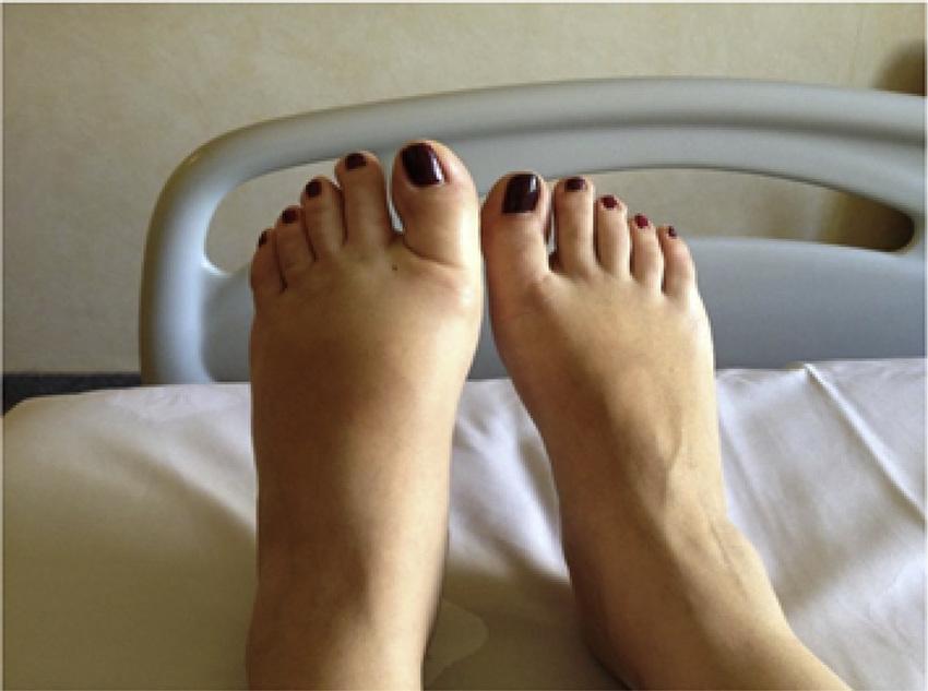 سندروم پای بی قرار و درد شبانه پا