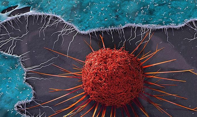 علائم و نشانه های سرطان در مردان چیست؟ چطور بفهمیم سرطان داریم؟ خون در ادرار و توده بیضه نشانه سرطان است؟ کمردرد دائمی علامت سرطان است؟ نشانه سرطان پروستات چیست؟
