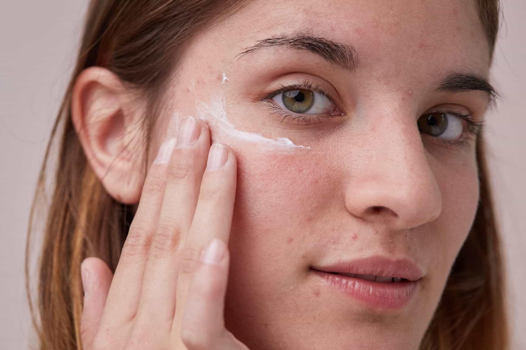 از بین بردن لکه های پوستی
